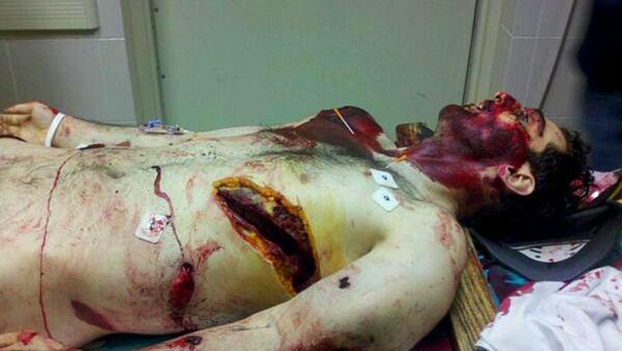 Tamerlan Tsarnaev Dead