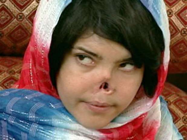 Bibi Aishi Taliban Removed Her Nose