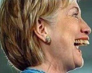 Hillary Clinton OVERBITE