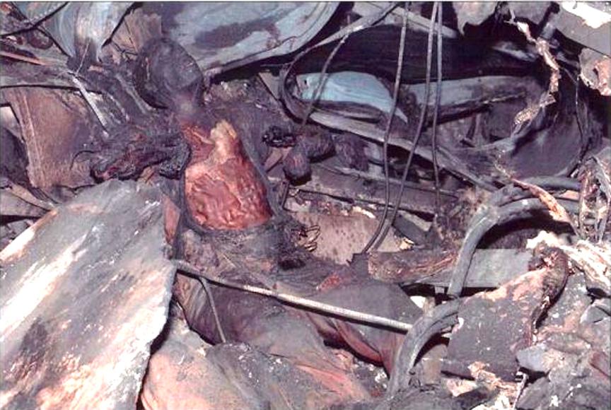 9-11-burned