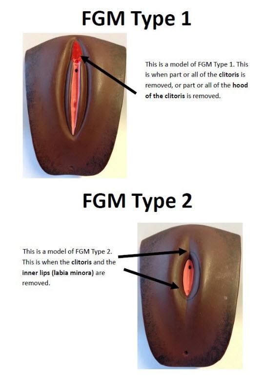 fgm type 1 bloviating zeppelin